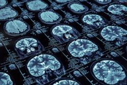 brain scan images