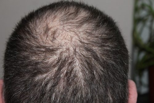 biotin deficiency hair loss